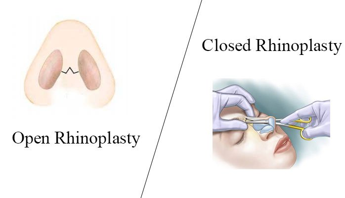 ADVANTAGE AND DISADVANTAGE OF CLOSE AND OPEN RHINOPLASTY