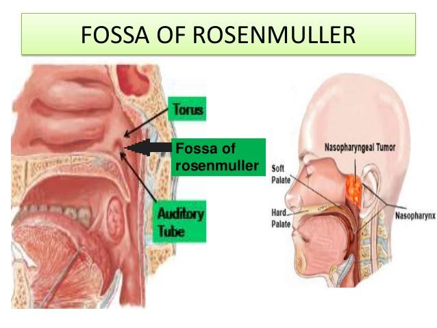 fossa of Rosenmuller