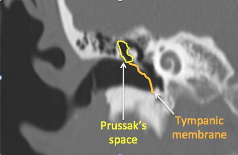 Prussak's space