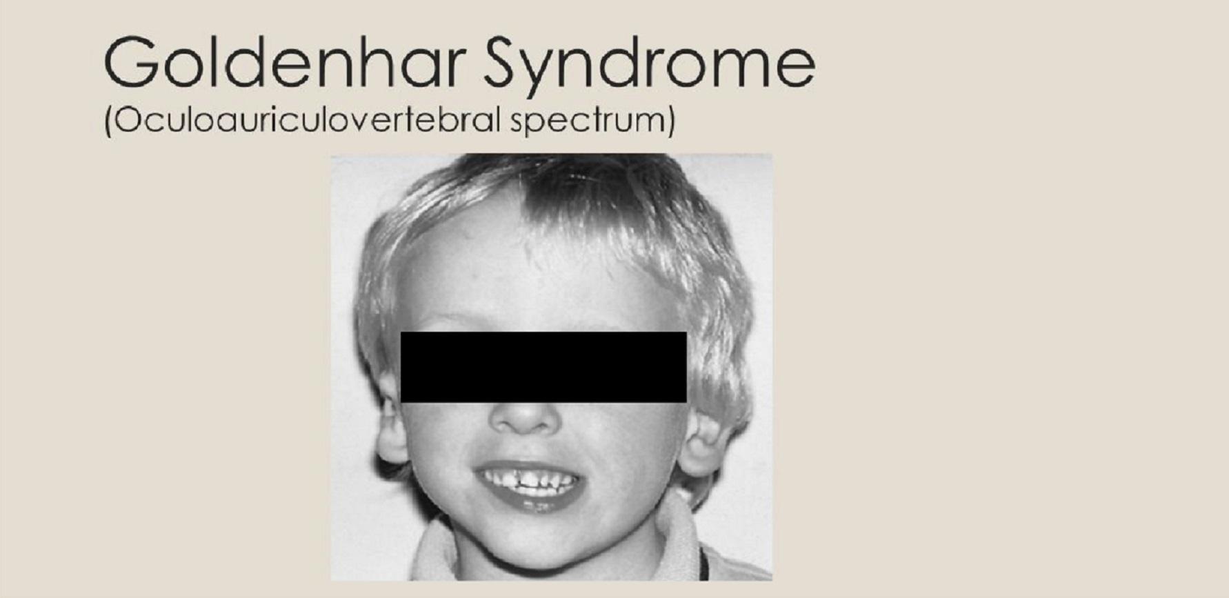 Goldenhar syndrome